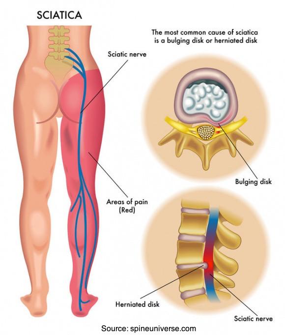 Anatomical illustration of a sciatica site