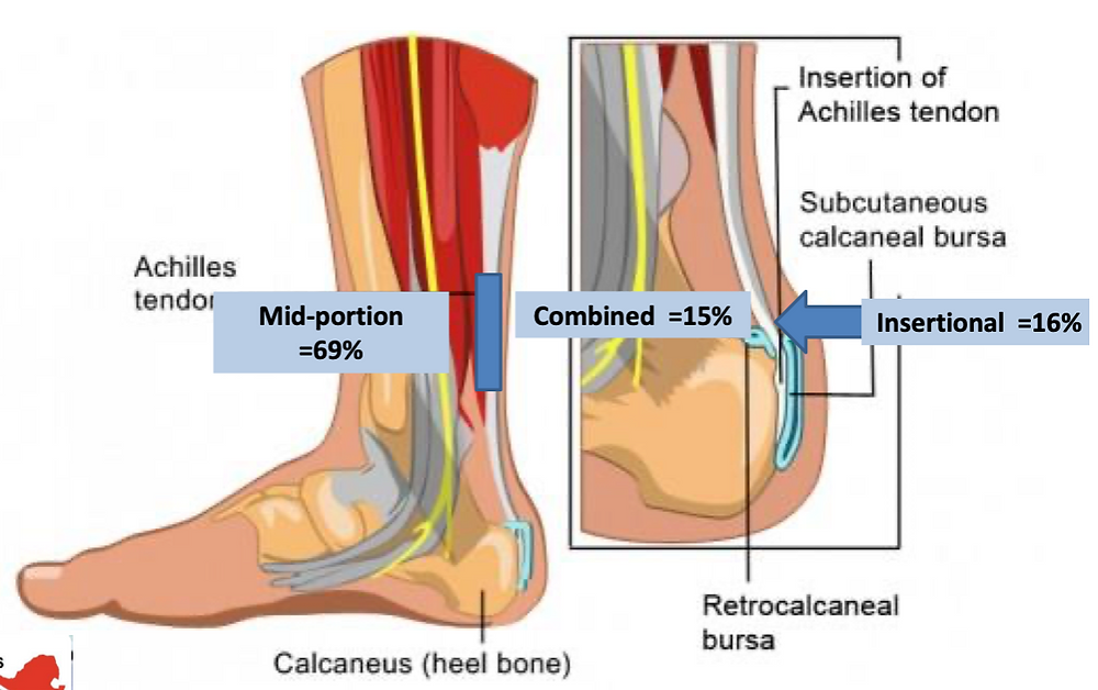 anatomical illustration highlighting achilles tendon pain site