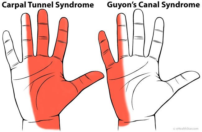 Illustration of two hands showing carpal tunnel syndrome and guyon's canal syndrome