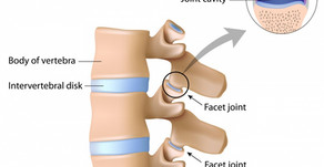 Facet joint syndrome (Lower Back Pain)