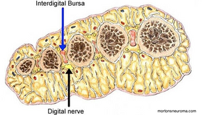 Morton's neuroma / Intermetatarsal bursitis