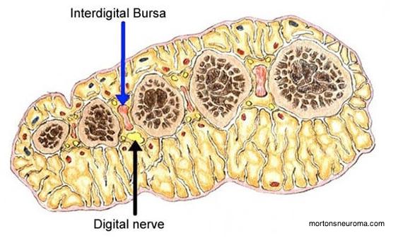 anatomical illustration of the metatarsal area displaying the interdigital bursa and digital nerve