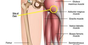 Upper hamstring pain
