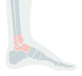 Illustration of a foot highlighting foot and ankle pain