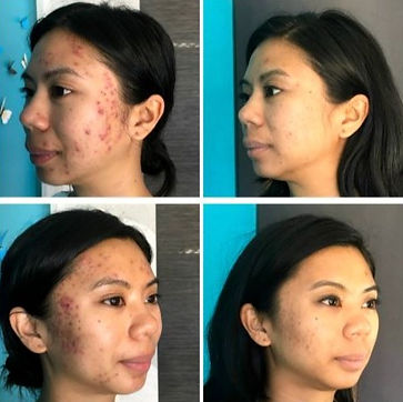 Before and after microneedling treatment for acne scarring
