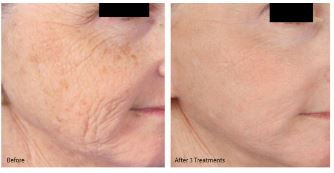 microneedling before and after for treatment of wrinkes and age spots