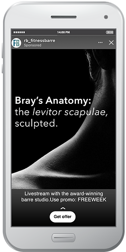 levitor scapulae.png