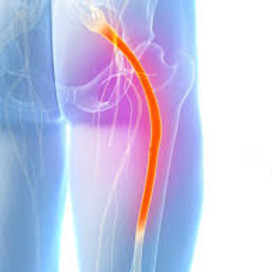 LIVE - Sciatica/ Relieve Pain and Restore Health