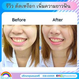 ตัดแต่งเหงือก ฟันสั้น เหงือกงอกหลังจัดฟัน.jpg
