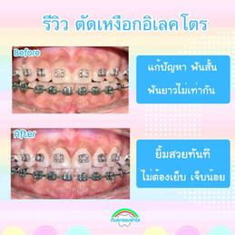 ตัดเหงือก ระหว่างจัดฟัน.jpg