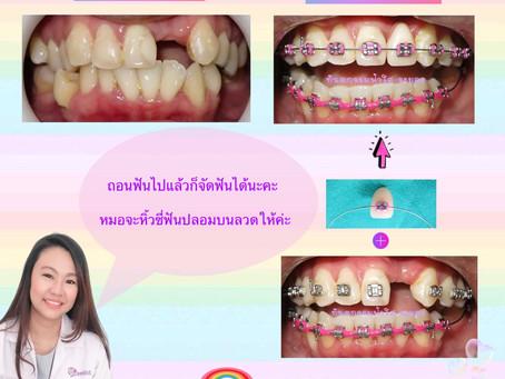 ใส่ฟันปลอมขณะจัดฟัน
