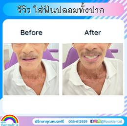 ฟันปลอม คนแก่ ระยอง.jpg