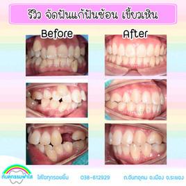 จัดฟัน ไม่ใส่ฟันปลอม ระยอง.jpg