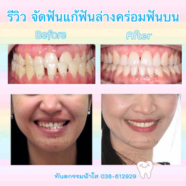 จัดฟัน แก้ฟันล่างคร่อมบน ไม่ผ่าตัด