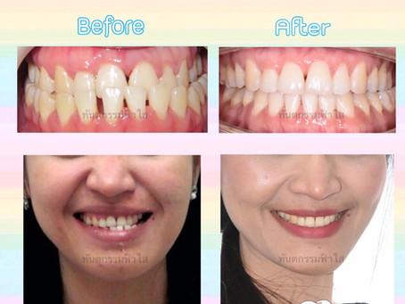 เคสฟันล่างคร่อมฟันบน จัดแบบไม่ผ่าตัดค่ะ