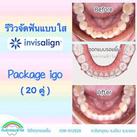 จัดฟันแบบใส invisalign go