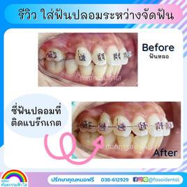 ใส่ฟันปลอมจัดฟัน ระยอง ทันตกรรมฟ้าใส.jpg