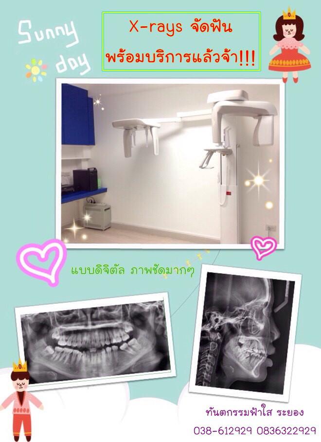 เอ๊กซเรย์ x-ray ทำฟัน จัดฟัน ระยอง
