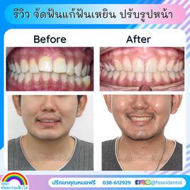 จัดฟันปรับรูปหน้า จัดฟันหน้าเปลี่ยน แก้ฟันเหยิน ฟ้าใสระยอง.jpg