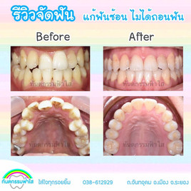 ฟันซ้อนเก จัดฟันไม่ถอนฟัน.jpg