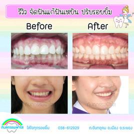 จัดฟัน ฟันเหยิน ปักหมุด.jpg