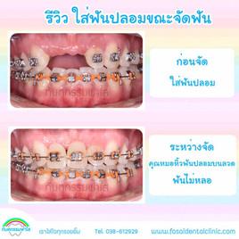ใส่ฟันปลอม ระหว่างจัดฟัน.jpg