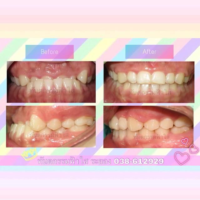 ฟันล่างคร่อมบน ไม่ต้องผ่าตัด