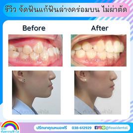 ฟันล่างคร่อมบน ไม่ผ่าตัด จัดฟัน ระยอง.jpg