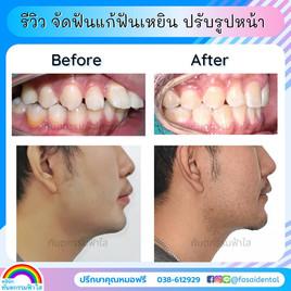 ฟันเหยินจัดฟัน ถอนฟันกรามจัดฟัน ระยอง.jpg