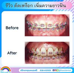 ตัดเหงือกระหว่างจัดฟัน เหงือกงอก ฟันสั้น.jpg