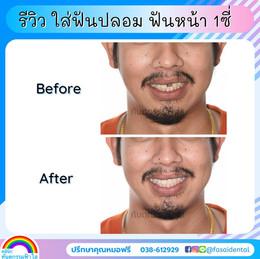 ใส่ฟันปลอม ฟันหน้า ฟันหลอ.jpg