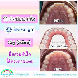 จัดฟันแบบใส จัดฟันไม่ถอนฟัน.jpg
