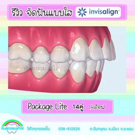 จัดฟันใส ฟันเหยิน จัดฟันไม่ถอนฟัน.mov