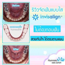 จัดฟันแบบใส ระยอง invisalign
