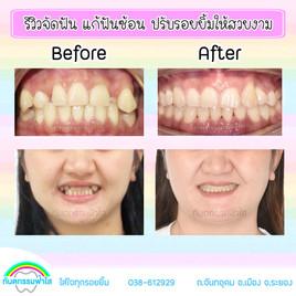 ฟันซ้อน จัดฟัน.jpg