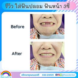 ฟันปลอม ระยอง.jpg