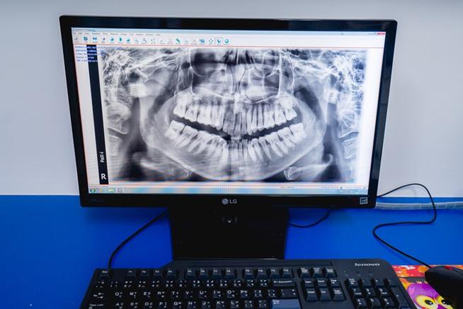 ทำฟัน จัดฟัน ระยอง 17.jpg