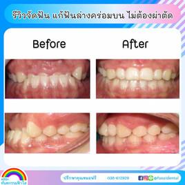 จัดฟันระยอง ฟันล่างคร่อมบน ไม่ต้องผ่าตัด