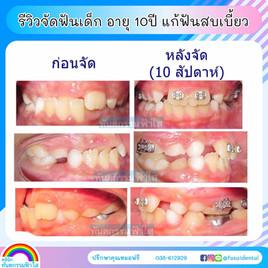 จัดฟันเด็ก จัดฟันระยอง.jpg