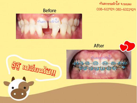 จัดฟัน แก้ฟันล่างคร่อมบน ไม่ผ่าตัด แก้ฟันห่าง
