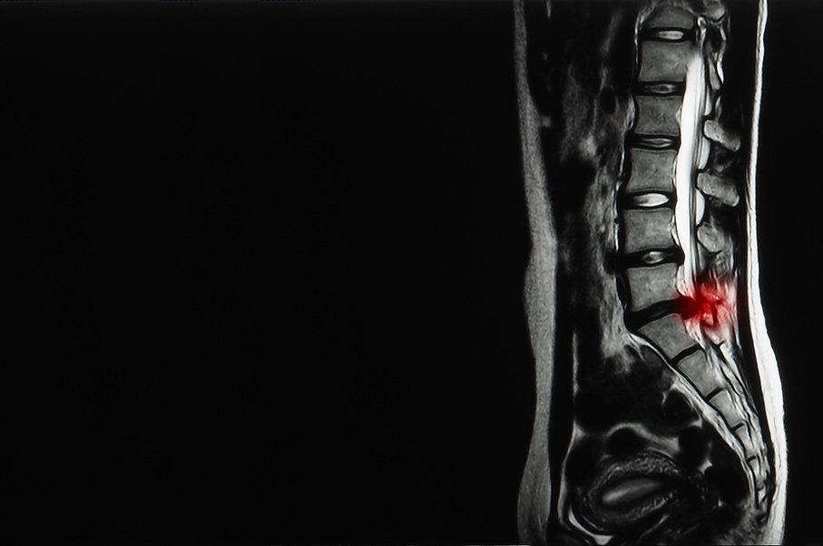MIS Spine Options.jpg