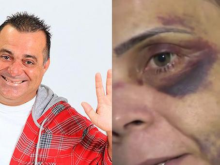 Ex-namorada acusa humorista Renato Fechine de agressão