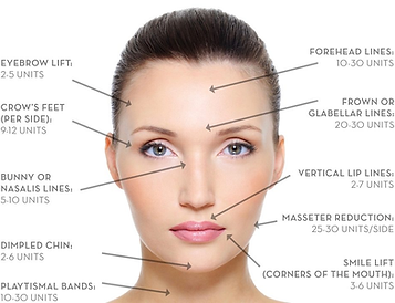 botox-how-much.png