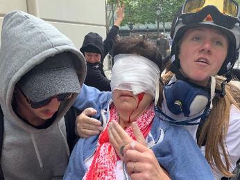 Polgárháború Párizsban: most egy nő szemét lőtték ki Macron rendőrei