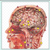 Bio resonance Physiospect