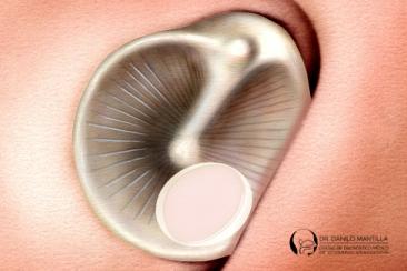Miringoplastia endoscópica en el consultorio | Perforación timpánica