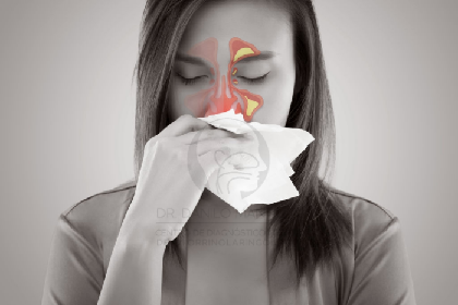 Sinusitis crónica   Avances en el tratamiento