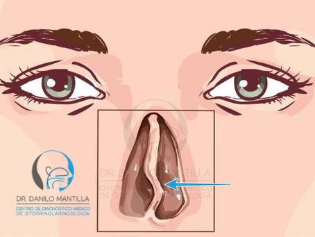 Desviación Septal   Desviación del tabique nasal   Tabique desviado   Diagnóstico y tratamiento