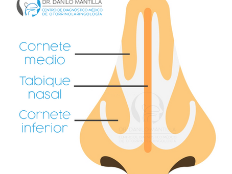 Cirugía de cornetes | Turbinoplastia | Hipertrofia de cornetes