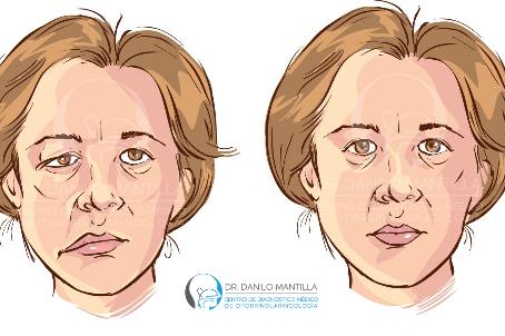 Parálisis facial | Diagnóstico y tratamiento